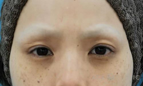 眼瞼下垂_眼瞼挙筋前転術BEFORE