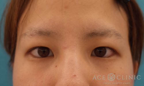 眼瞼挙筋前転術before