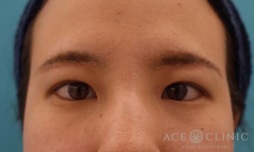 眼瞼挙筋前転術after