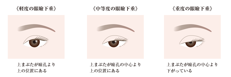ptosislevel