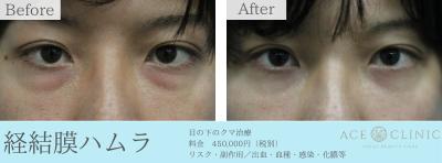 クマ-経結膜ハムラ法症例