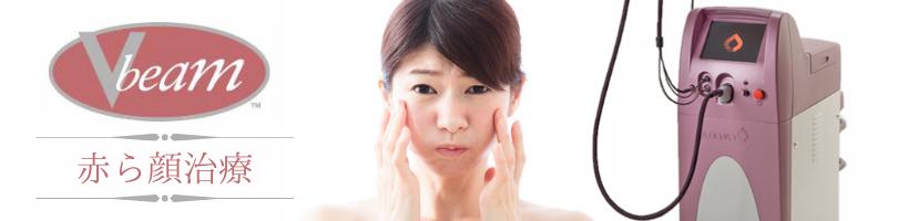赤ら顔治療