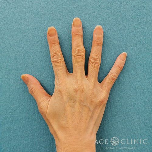 hand_R_before