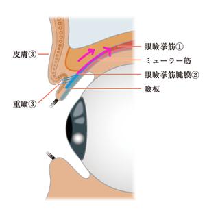 眼瞼下垂を伴う