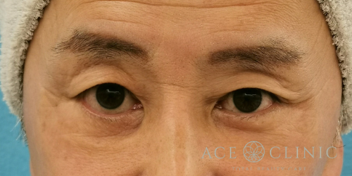 眼瞼下垂・眉毛下切開法_名古屋・大阪梅田エースクリニック
