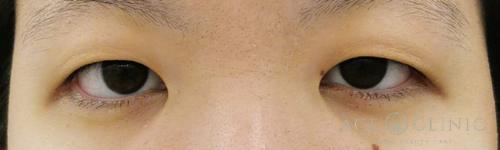 眼瞼下垂_眼瞼挙筋前転法-【エースクリニック】名古屋院・大阪梅田院