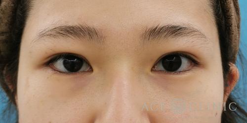 眼瞼下垂症例_名古屋・大阪梅田エースクリニック