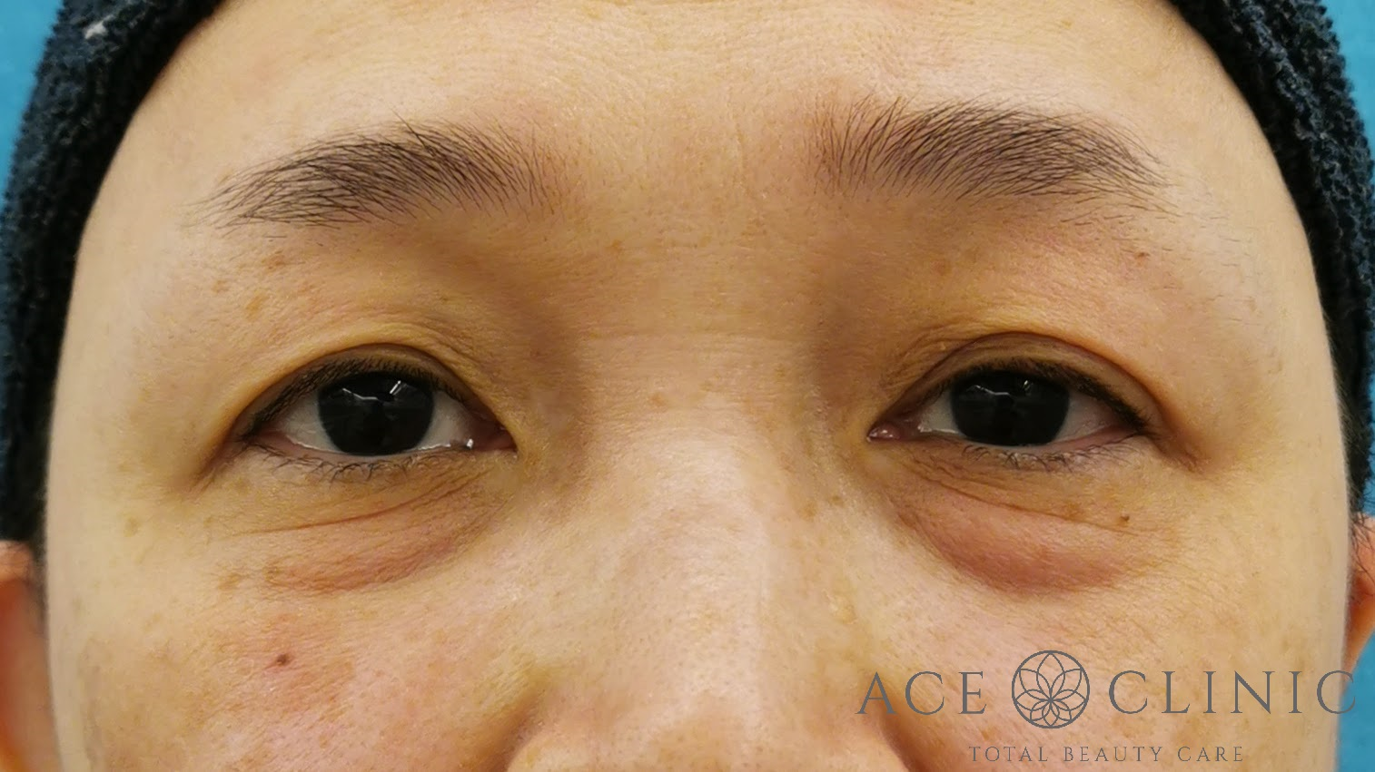 脱脂CRF法(目の下のクマ手術) 50代女性 術前 【エースクリニック】名古屋・大阪梅田