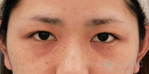 眼瞼下垂治療_名古屋・大阪梅田エースクリニック