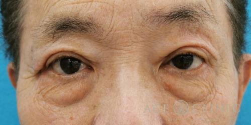眼瞼下垂・重瞼ライン切開_名古屋・大阪梅田エースクリニック