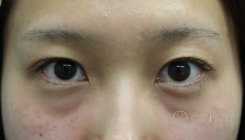 二重まぶた埋没法 症例 30代女性 施術前 【エースクリニック】名古屋・大阪梅田