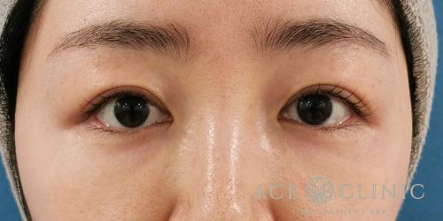 眼瞼下垂_症例_エースクリニック名古屋 (5)