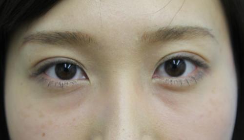 二重まぶた埋没法 症例 30代女性 施術後 【エースクリニック】名古屋・大阪梅田