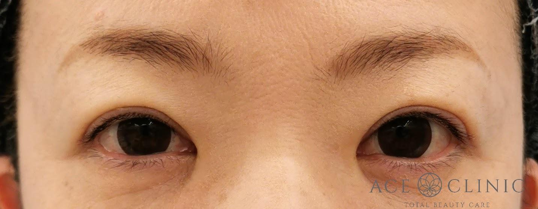 二重まぶた埋没法 症例 40代女性 施術後 【エースクリニック】名古屋・大阪梅田