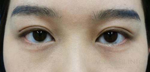 二重まぶた埋没法 症例 20代女性 施術後 【エースクリニック】名古屋・大阪梅田