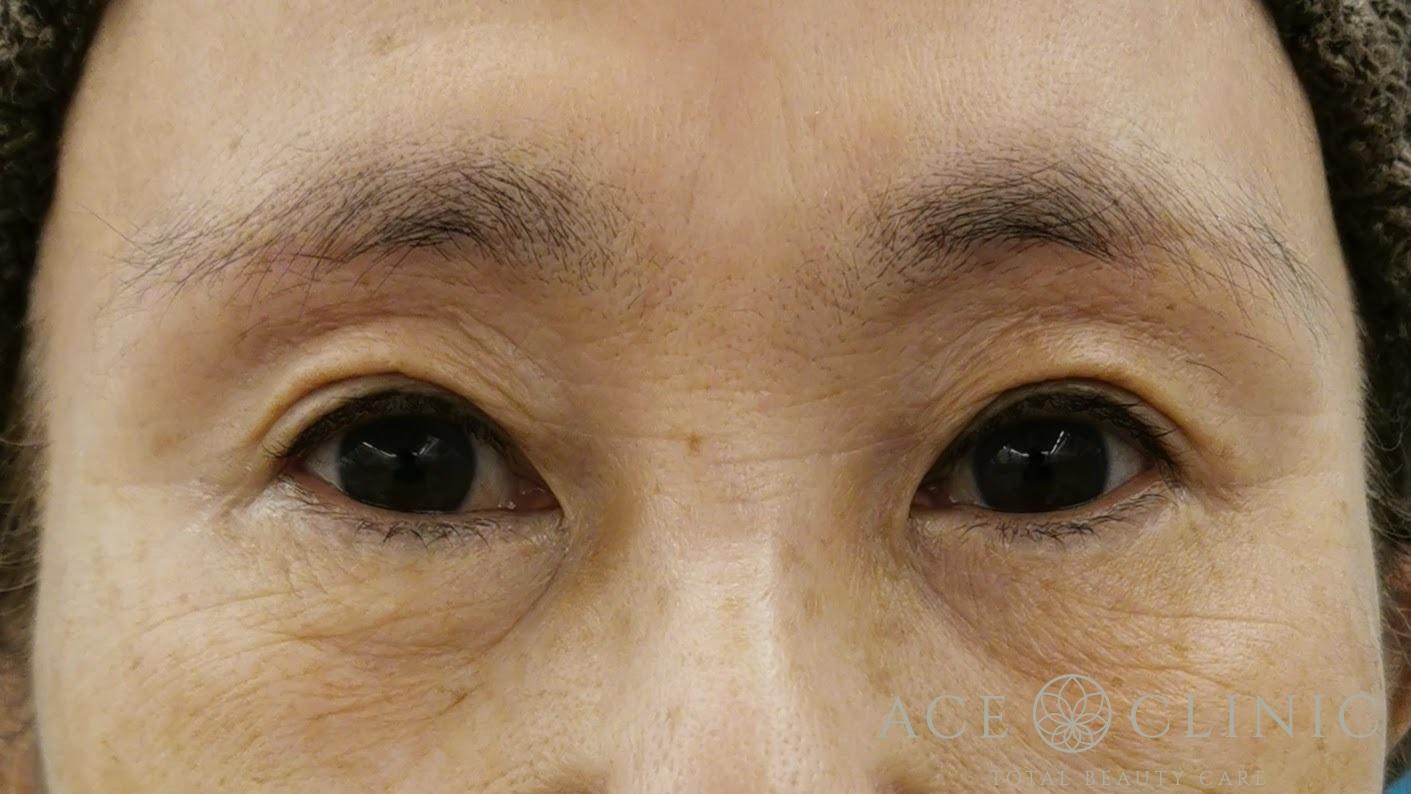 眉毛下切開法 60代女性 術後3ヶ月