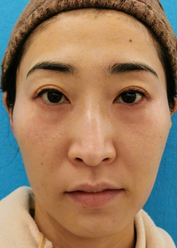 ヒアルロン酸・ボトックスリフト症例施術前_30代女性