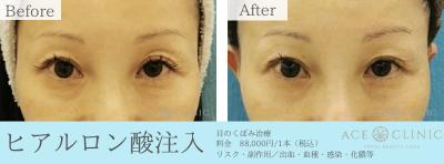 目のくぼみ_ヒアルロン酸注入_女性60代症例
