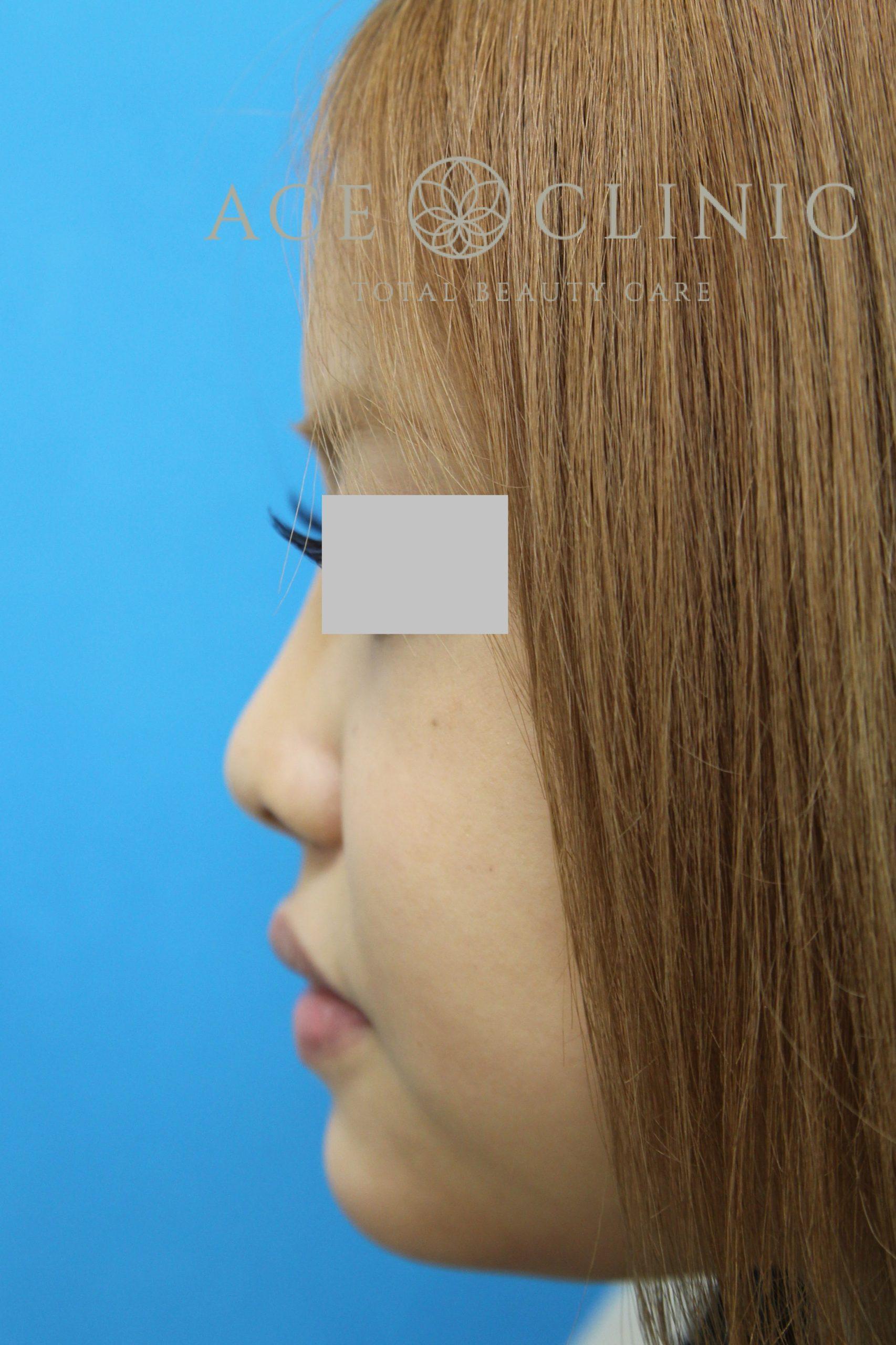 あご形成(シリコンプロテーゼ) 20代女性 術後 横