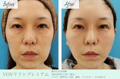 お顔のたるみ治療_VOVリフトプレミアム_エースクリニック名古屋院・大阪梅田院 (1)
