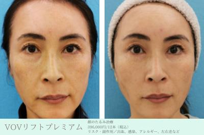 お顔のたるみ治療_VOVリフトプレミアム_エースクリニック名古屋院・大阪梅田院 (2)
