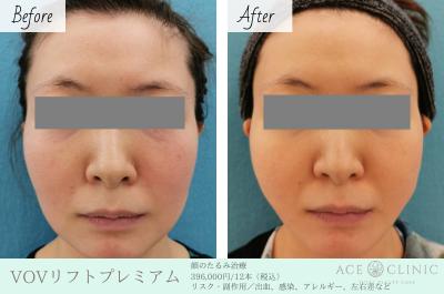 お顔のたるみ治療_VOVリフトプレミアム_エースクリニック名古屋院・大阪梅田院