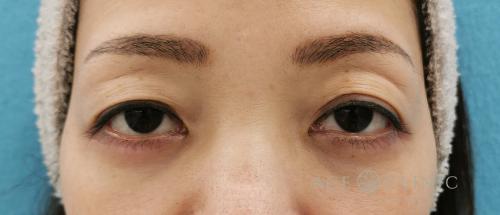 まぶたのたるみ治療_眉毛下切開法症例_【エースクリニック】名古屋院・大阪梅田院 (2)
