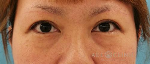 目の下のクマたるみ治療_脱脂CRF法症例_【エースクリニック】名古屋院・大阪梅田院