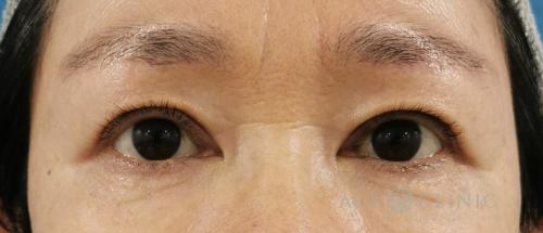 眼瞼下垂・まぶたのたるみ治療_眉毛下切開法症例_【エースクリニック】名古屋院・大阪梅田院 (1)