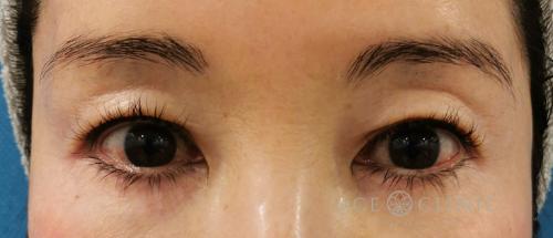 眼瞼下垂・まぶたのたるみ治療_眉毛下切開法症例_【エースクリニック】名古屋院・大阪梅田院 (2)