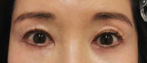 眼瞼下垂・まぶたのたるみ治療_眉毛下切開法症例_【エースクリニック】名古屋院・大阪梅田院 (3)