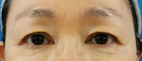 眼瞼下垂・まぶたのたるみ治療_眉毛下切開法症例_【エースクリニック】名古屋院・大阪梅田院