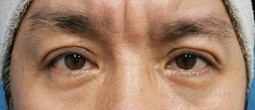 眼瞼下垂治療_眼瞼挙筋前転法症例_【エースクリニック】名古屋院・大阪梅田院 (1)