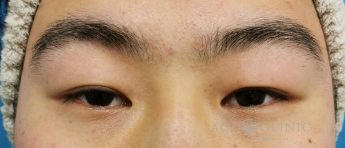 眼瞼下垂治療_眼瞼挙筋前転法症例_【エースクリニック】名古屋院・大阪梅田院 (2)