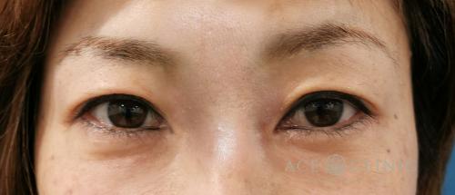 眼瞼下垂治療_眼瞼挙筋前転法症例_【エースクリニック】名古屋院・大阪梅田院 (4)