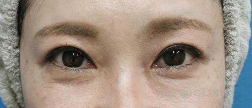 眼瞼下垂治療_眼瞼挙筋前転法症例_【エースクリニック】名古屋院・大阪梅田院 (5)