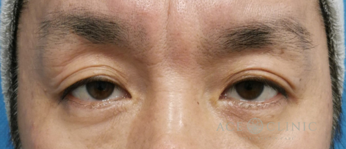 眼瞼下垂治療_眼瞼挙筋前転法症例_【エースクリニック】名古屋院・大阪梅田院