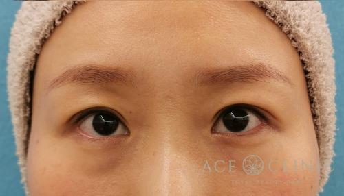 眼瞼下垂治療_眼瞼挙筋前転法症例_女性【エースクリニック】名古屋院・大阪梅田院 (3)