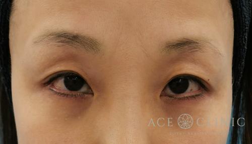 眼瞼下垂治療_眼瞼挙筋前転法症例_女性【エースクリニック】名古屋院・大阪梅田院