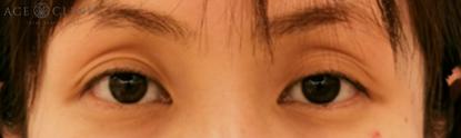 くぼみ目の治療_眼瞼下垂_老け顔の代表格!上まぶたのくぼみは眼瞼下垂が原因!?【エースクリニック】名古屋院・大阪梅田院 (1)