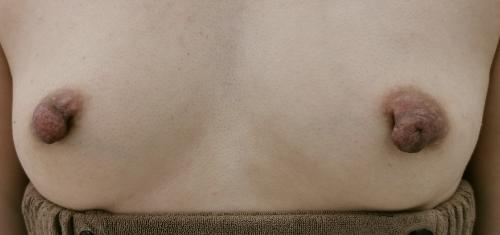 乳頭・乳輪形成_乳頭縮小症例_【エースクリニック】名古屋院・大阪梅田院 (7)
