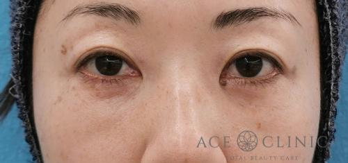 目の下のクマ治療_脱脂CRF症例_【エースクリニック】名古屋院・大阪梅田院 (1)