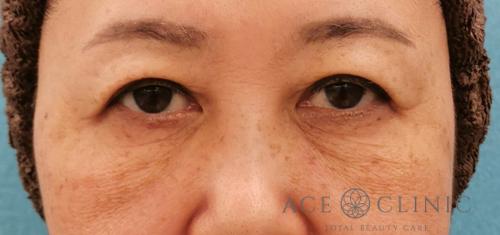 目の下のクマ治療_脱脂CRF症例_【エースクリニック】名古屋院・大阪梅田院 (2)