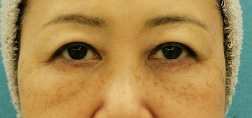 目の下のクマ治療_脱脂CRF症例_【エースクリニック】名古屋院・大阪梅田院 (3)