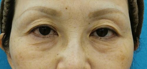 目の下のクマ治療_脱脂CRF症例_【エースクリニック】名古屋院・大阪梅田院 (4)